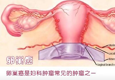 由于卵巢的胚胎发育,组织解剖及内分泌功能较复杂